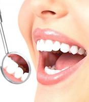 chirurgie-dentaire-tunisie
