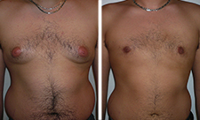 Chirurgie-gynecomastie-tunisie-avant-apres