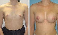 implant-mammaire-tunisie-avant-apres